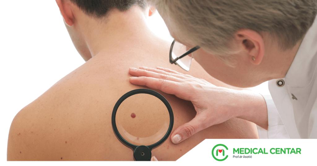 PZU MEDICAL CENTAR Dermatovenerologija